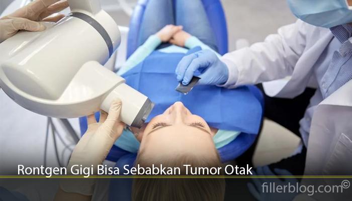 Rontgen Gigi Bisa Sebabkan Tumor Otak